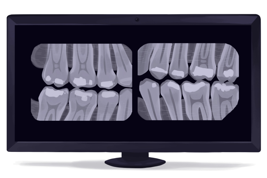 Cartoon image of bitewing X-ray images showing the teeth