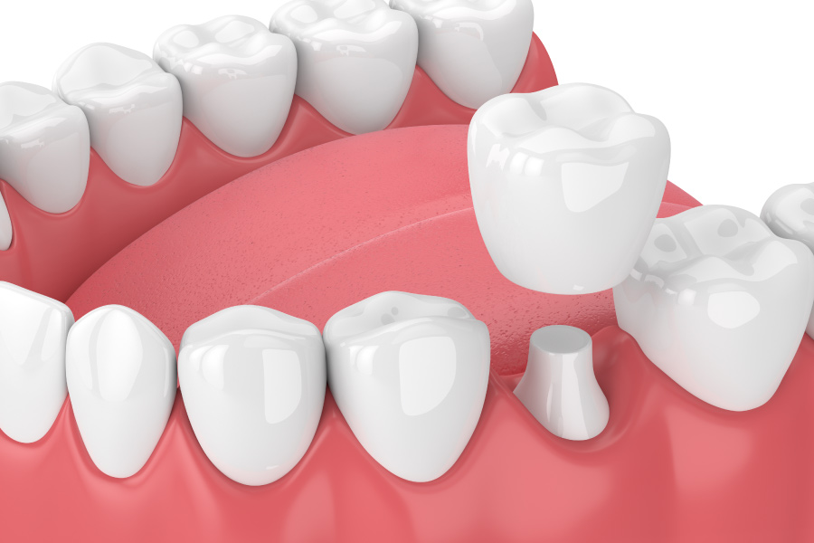 A same-day CEREC dental crown tops a compromised natural tooth